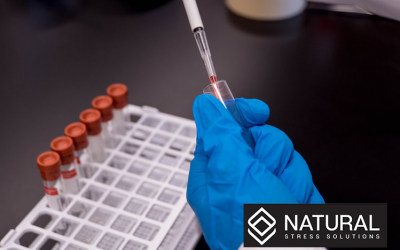CBD and Drug Screens – Will I Test Positive?